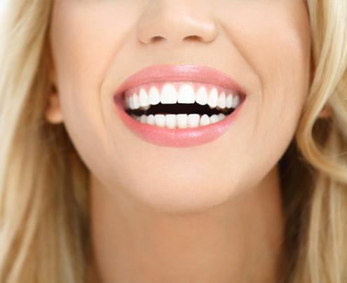 Chirurgia Estetica Orale Legnano
