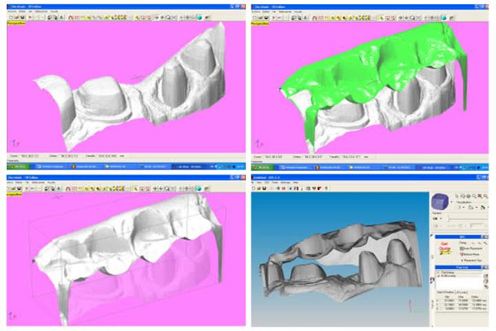 Implantologia Protesicamente Guidata Legnano