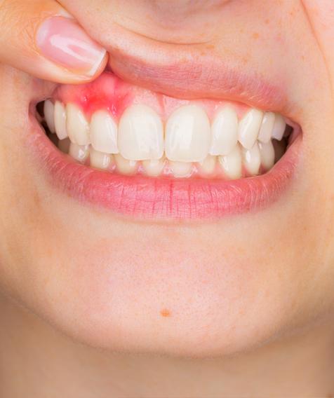 Ortodonzia invisibile Legnano
